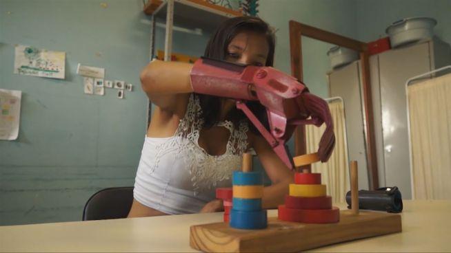 Bionischer Arm: Brasilianer baut Billig-Prothesen